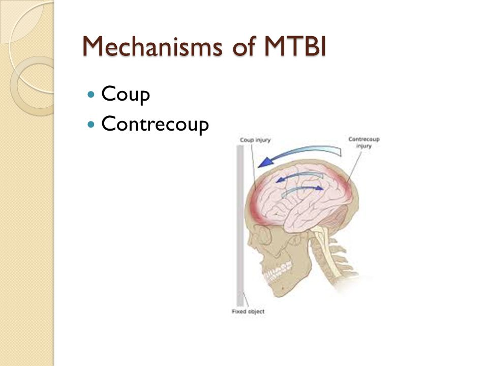 Mechanisms of MTBI Coup Contrecoup