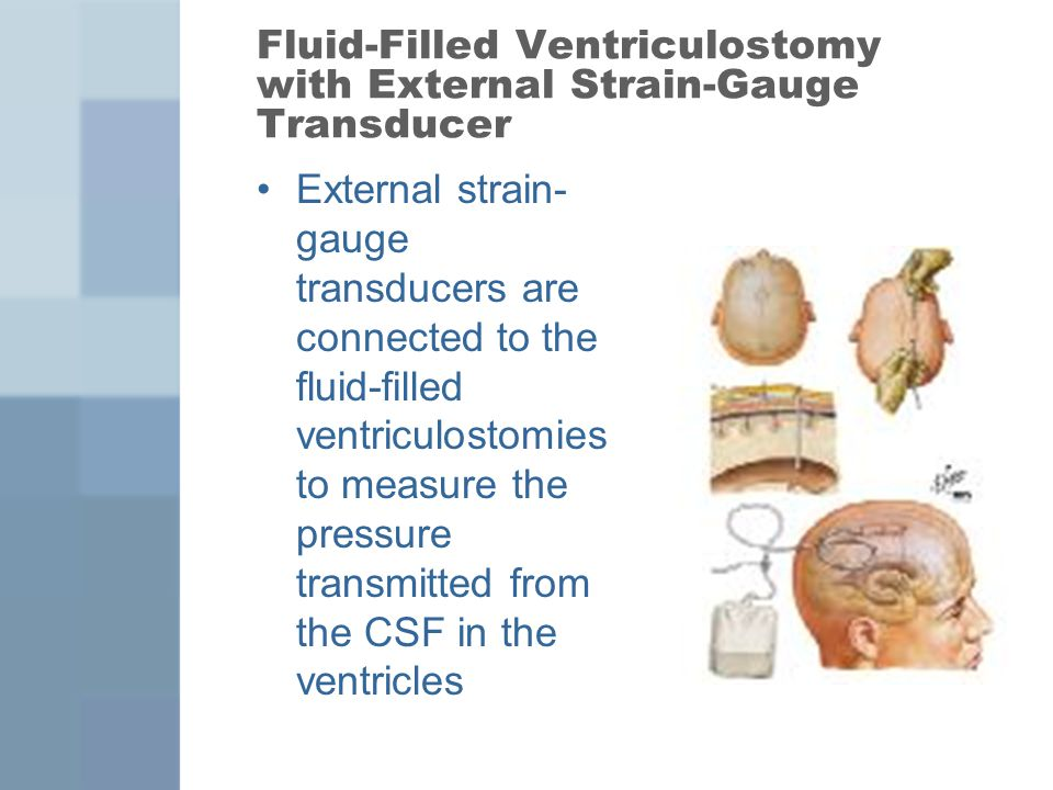 Fluid-Filled Ventriculostomy with External Strain-Gauge Transducer External strain- gauge transducers are connected to the fluid-filled ventriculostom