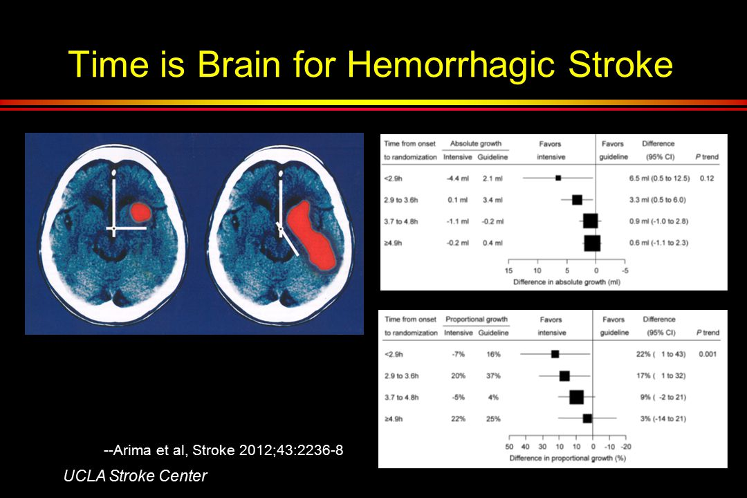 Time is Brain for Hemorrhagic Stroke UCLA Stroke Center --Arima et al, Stroke 2012;43:2236-8