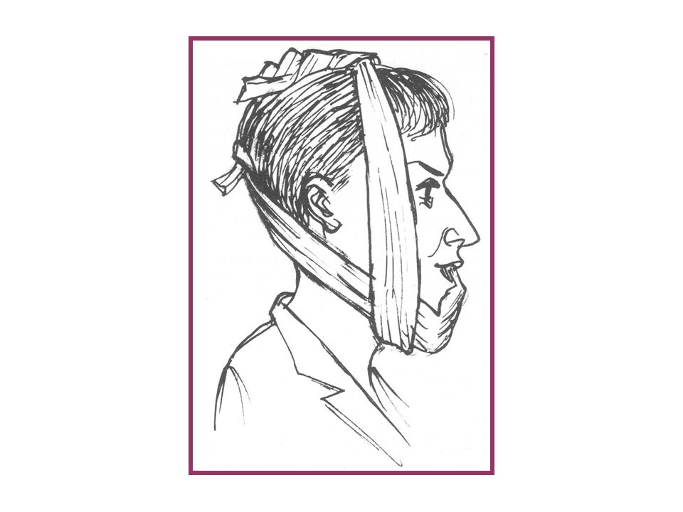 4.A four tail bandage is applied to hold the jaw in place for 48 hour and patients instructed to restrict opening to the thickness of spoon for the ne