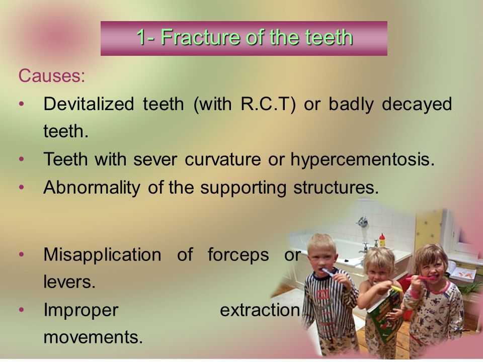 Causes: Devitalized teeth (with R.C.T) or badly decayed teeth.