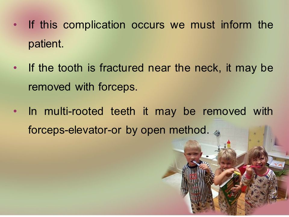Causes: Devitalized teeth (with R.C.T) or badly decayed teeth. Teeth with sever curvature or hypercementosis. Abnormality of the supporting structures