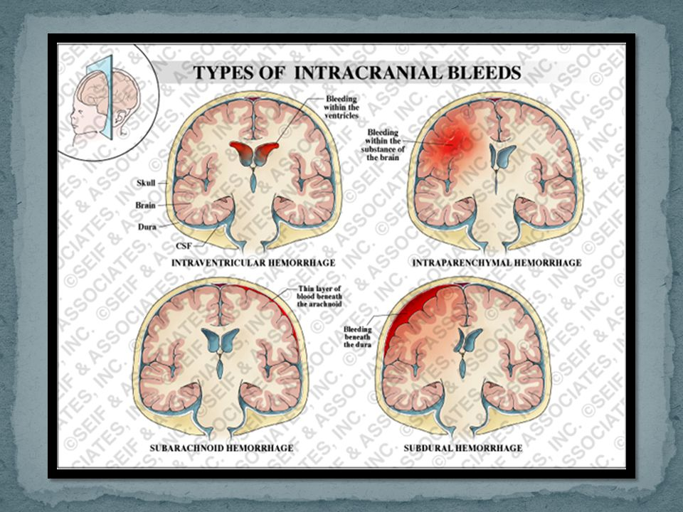An extradural haematoma (EDH) (also known as an epidural haematoma) is a collection of blood which forms between the inner surface of the skull and ou