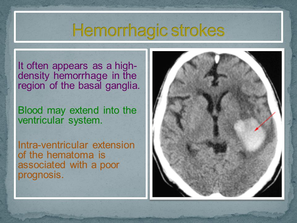 The most common cause of non-traumatic intra- cerebral hematoma is hypertensive hemorrhage.