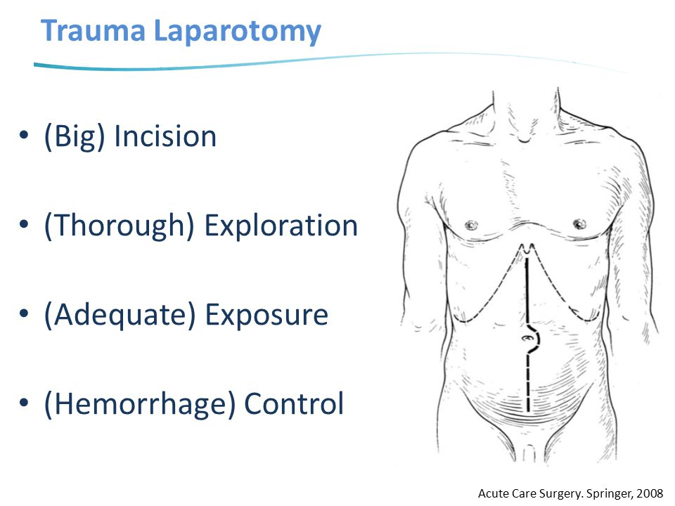 Trauma Laparotomy (Big) Incision (Thorough) Exploration (Adequate) Exposure (Hemorrhage) Control Acute Care Surgery. Springer, 2008