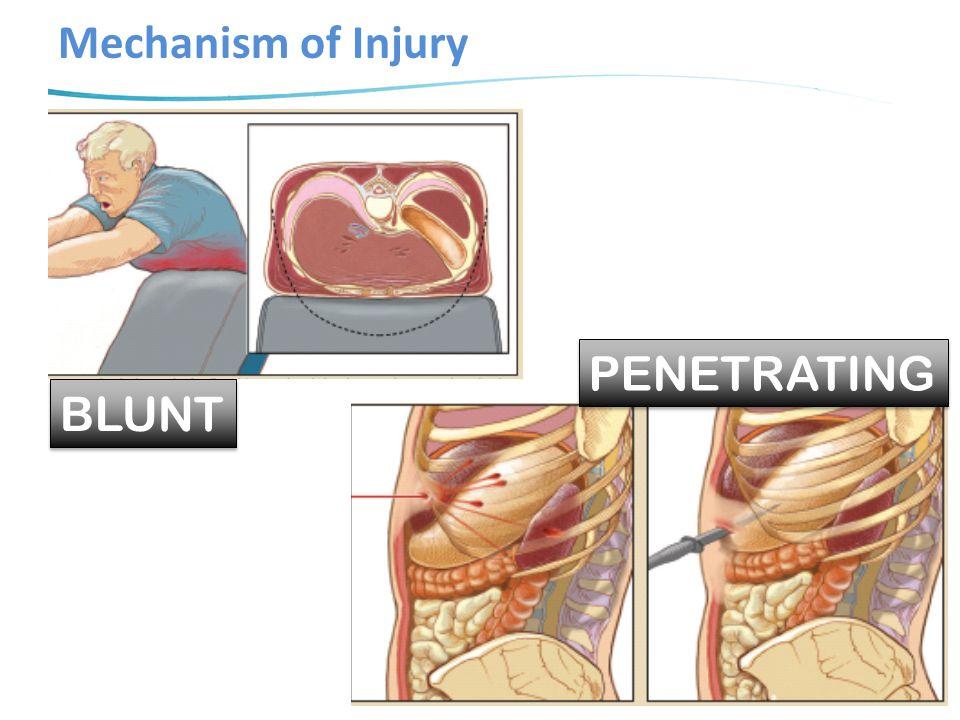 Common Injuries in Blunt Trauma Trauma Biomechanics 4 th ed. Springer 2014