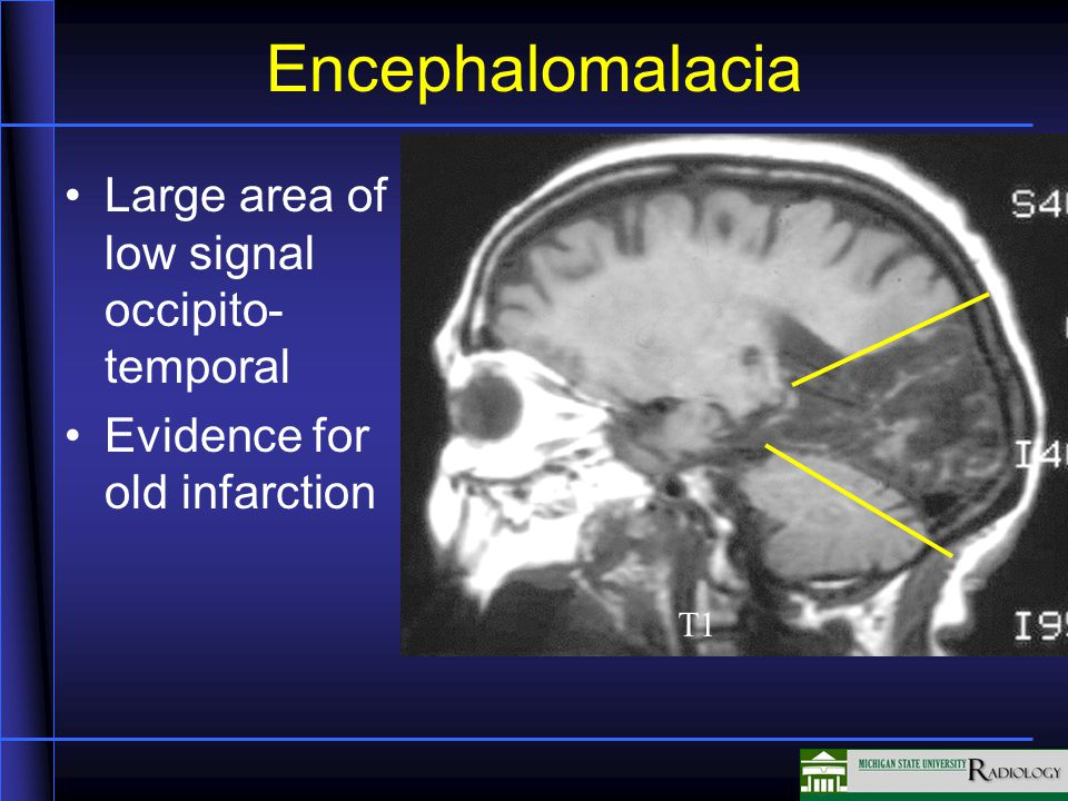 Encephalomalacia Large area of low signal occipito- temporal Evidence for old infarction T1