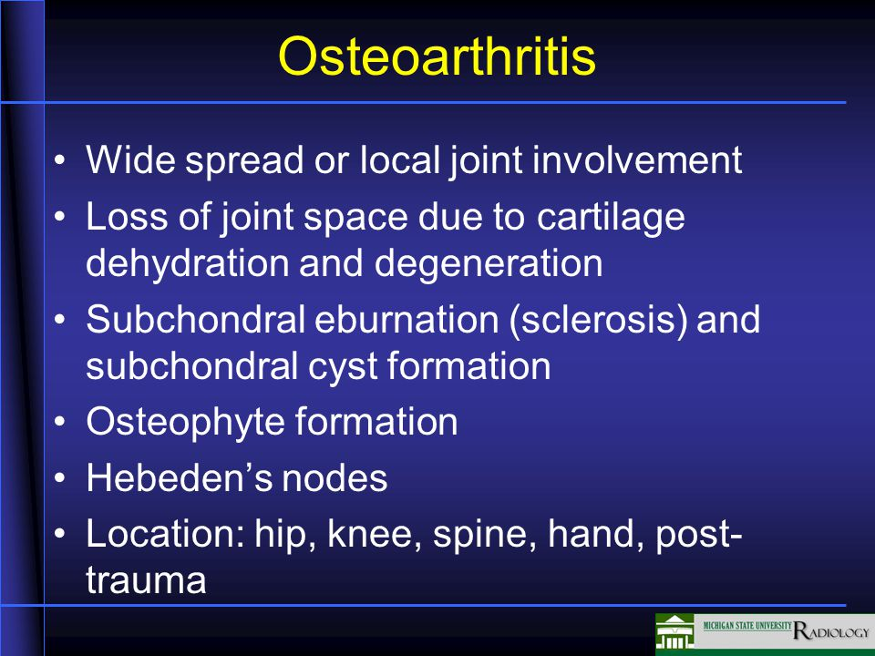 Osteoarthritis Wide spread or local joint involvement Loss of joint space due to cartilage dehydration and degeneration Subchondral eburnation (sclerosis) and subchondral cyst formation Osteophyte formation Hebeden's nodes Location: hip, knee, spine, hand, post- trauma