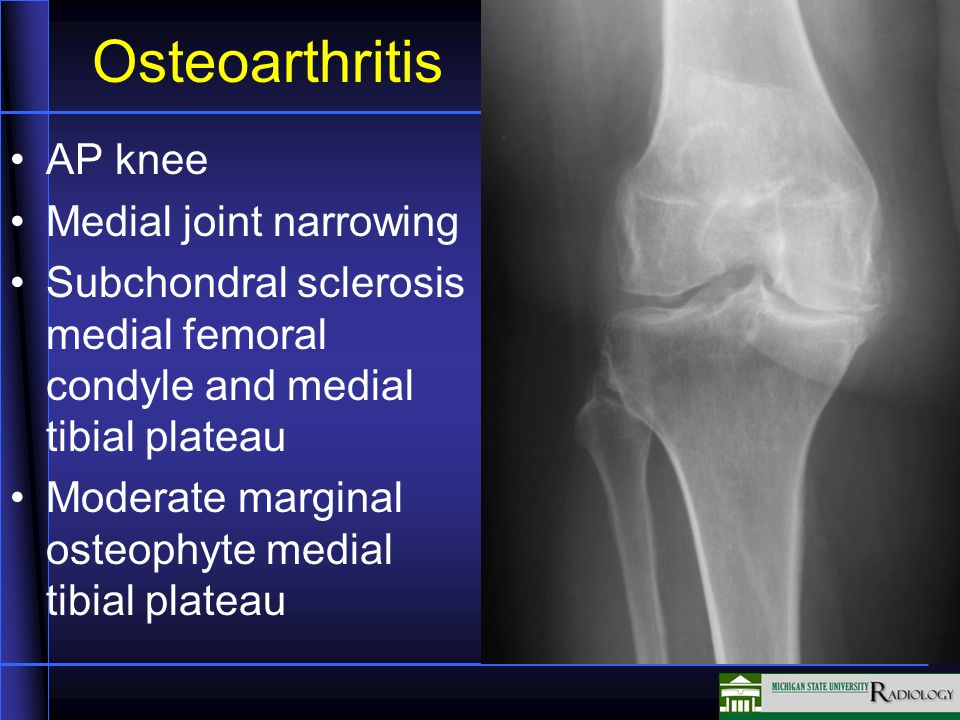 Osteoarthritis AP knee Medial joint narrowing Subchondral sclerosis medial femoral condyle and medial tibial plateau Moderate marginal osteophyte medial tibial plateau
