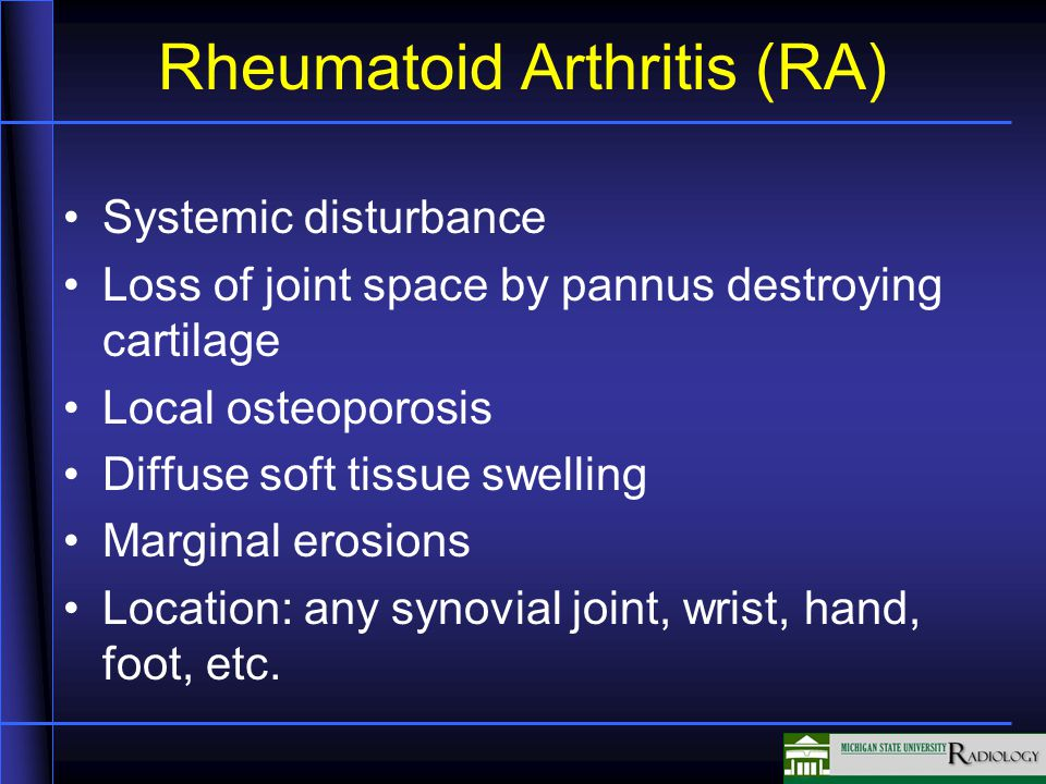 Rheumatoid Arthritis (RA) Systemic disturbance Loss of joint space by pannus destroying cartilage Local osteoporosis Diffuse soft tissue swelling Marginal erosions Location: any synovial joint, wrist, hand, foot, etc.