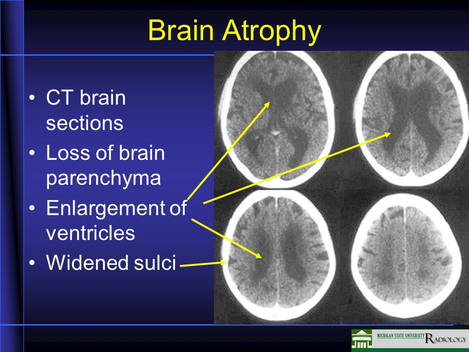 Brain Atrophy CT brain sections Loss of brain parenchyma Enlargement of ventricles Widened sulci