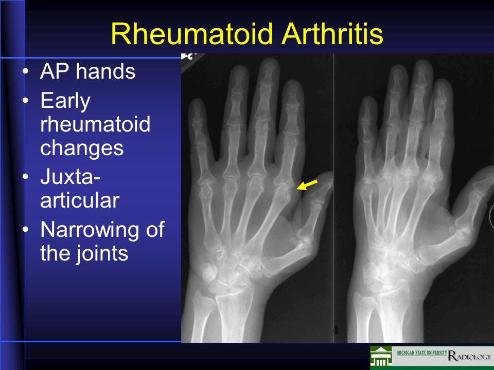 Rheumatoid Arthritis AP hands Early rheumatoid changes Juxta- articular Narrowing of the joints