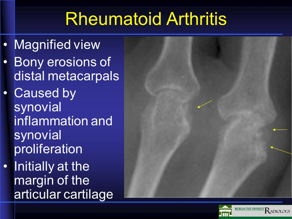 Rheumatoid Arthritis Magnified view Bony erosions of distal metacarpals Caused by synovial inflammation and synovial proliferation Initially at the margin of the articular cartilage
