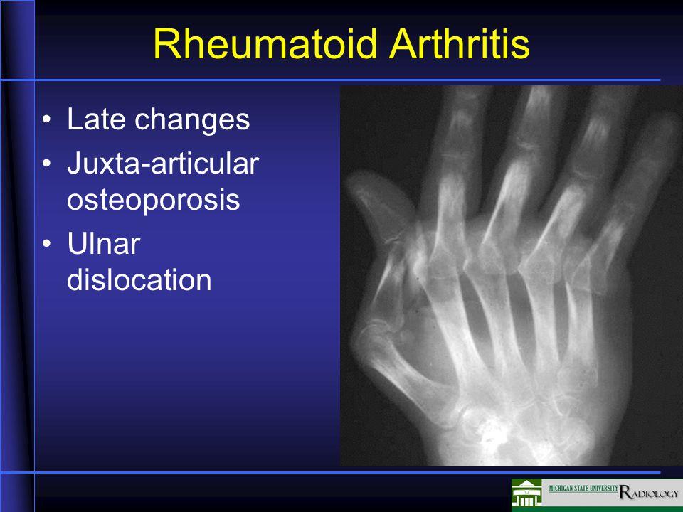 Rheumatoid Arthritis Late changes Juxta-articular osteoporosis Ulnar dislocation