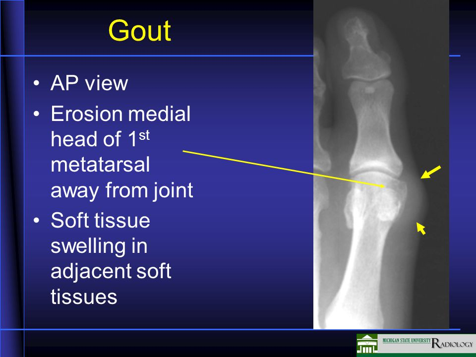 Gout AP view Erosion medial head of 1 st metatarsal away from joint Soft tissue swelling in adjacent soft tissues