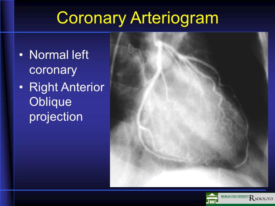 Coronary Arteriogram Normal left coronary Right Anterior Oblique projection