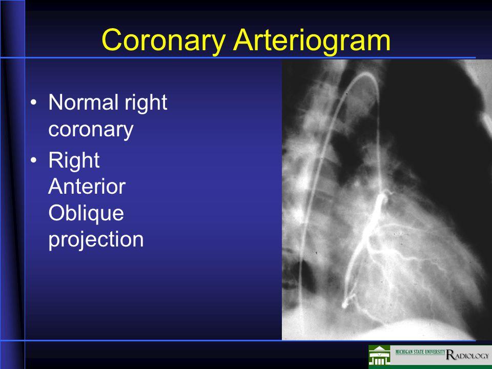 Coronary Arteriogram Normal right coronary Right Anterior Oblique projection