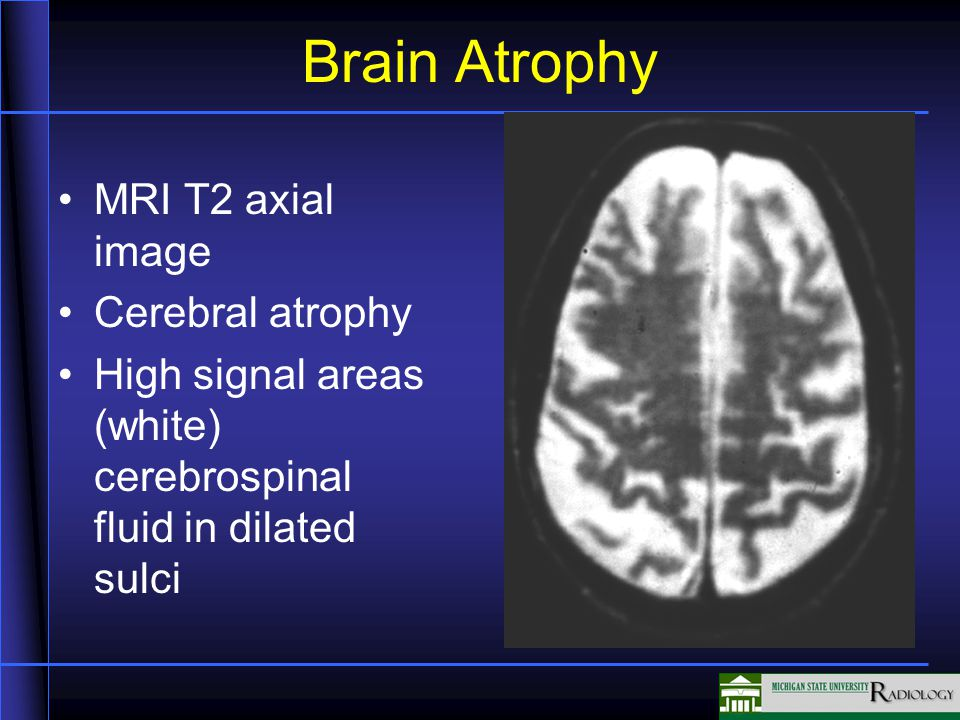 Brain Atrophy MRI T2 axial image Cerebral atrophy High signal areas (white) cerebrospinal fluid in dilated sulci