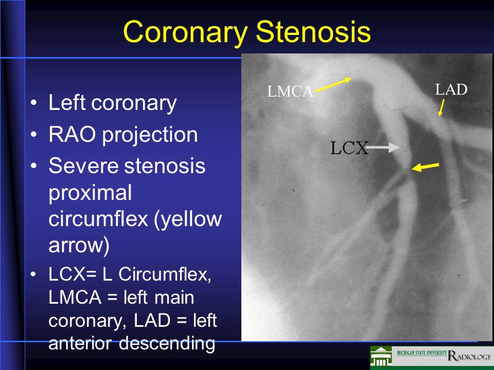 Coronary Stenosis Left coronary RAO projection Severe stenosis proximal circumflex (yellow arrow) LCX= L Circumflex, LMCA = left main coronary, LAD = left anterior descending LMCA LAD