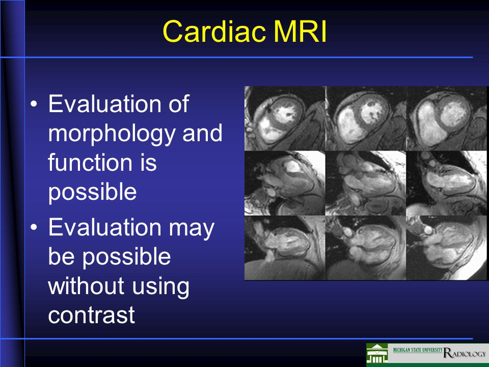 Cardiac MRI Evaluation of morphology and function is possible Evaluation may be possible without using contrast