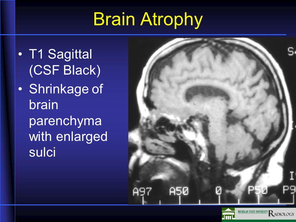 Brain Atrophy T1 Sagittal (CSF Black) Shrinkage of brain parenchyma with enlarged sulci