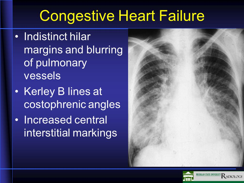 Congestive Heart Failure Indistinct hilar margins and blurring of pulmonary vessels Kerley B lines at costophrenic angles Increased central interstitial markings