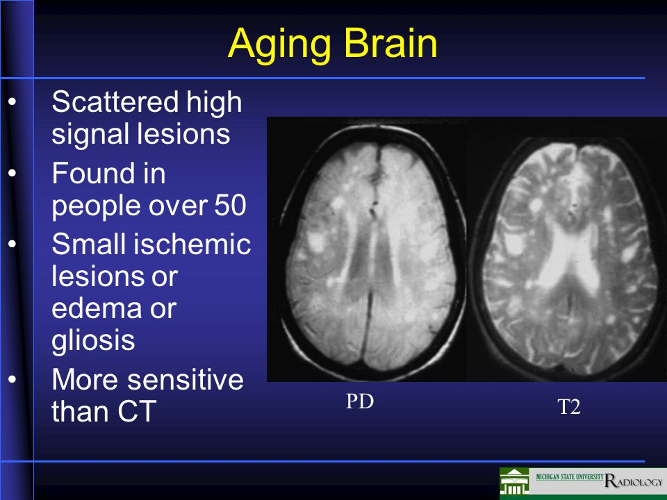 Aging Brain Scattered high signal lesions Found in people over 50 Small ischemic lesions or edema or gliosis More sensitive than CT PD T2