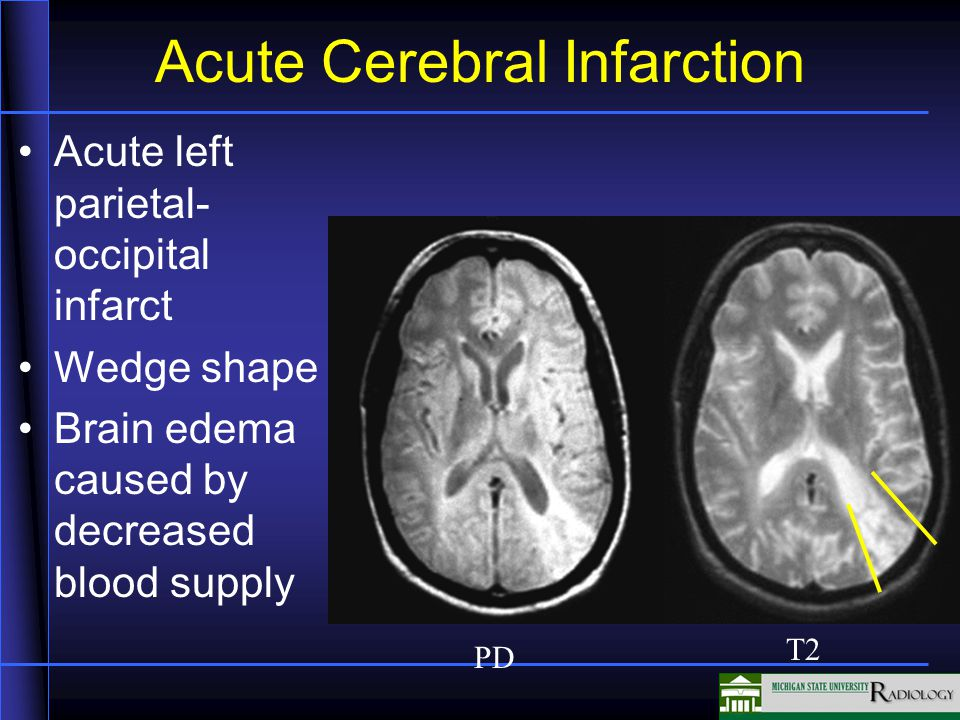 Acute Cerebral Infarction Acute left parietal- occipital infarct Wedge shape Brain edema caused by decreased blood supply PD T2