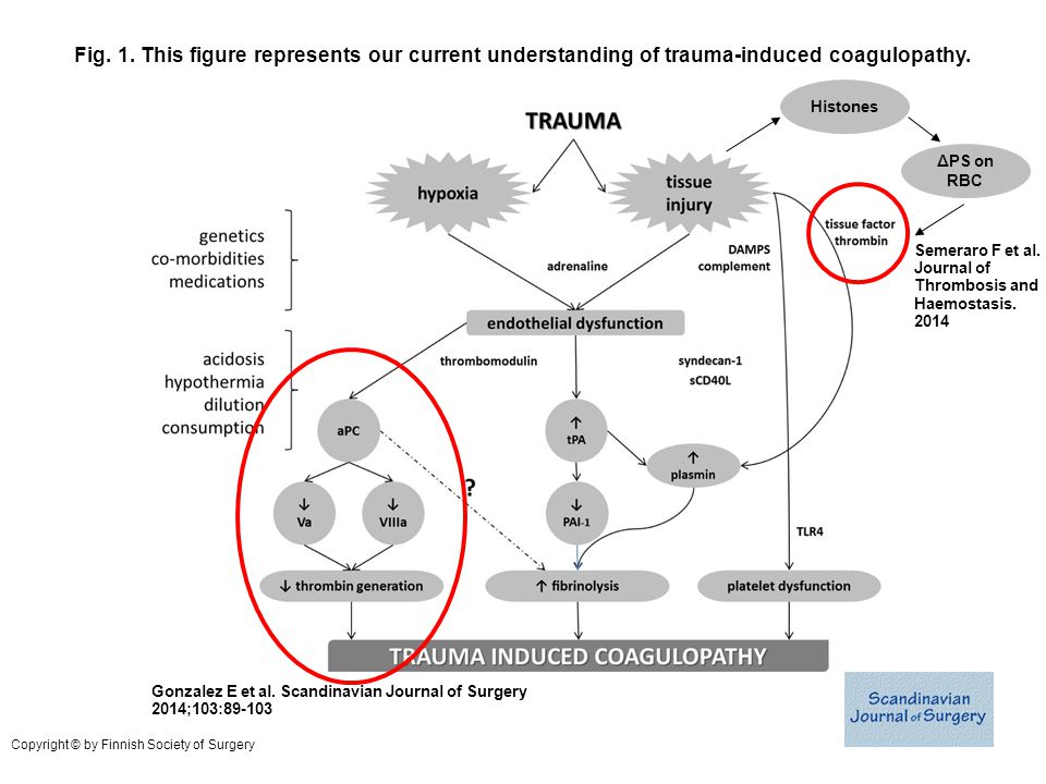 Fig. 1. This figure represents our current understanding of trauma-induced coagulopathy.