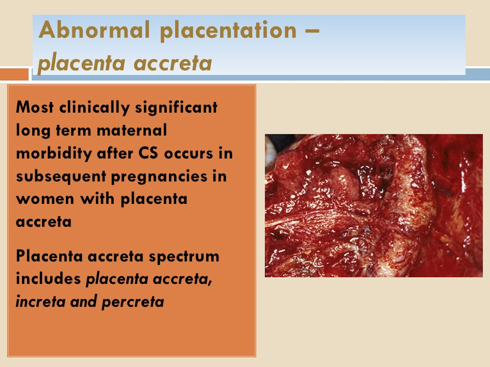 Abnormal placentation – placenta accreta Most clinically significant long term maternal morbidity after CS occurs in subsequent pregnancies in women with placenta accreta Placenta accreta spectrum includes placenta accreta, increta and percreta