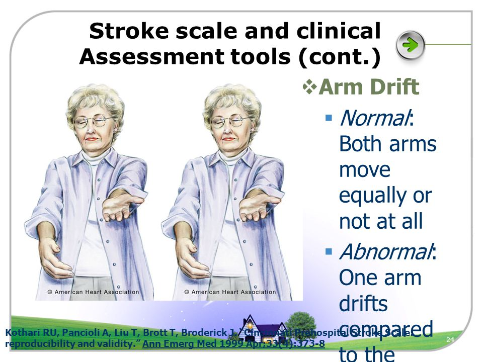 24 Stroke scale and clinical Assessment tools (cont.)  Arm Drift  Normal: Both arms move equally or not at all  Abnormal: One arm drifts compared to the other Kothari RU, Pancioli A, Liu T, Brott T, Broderick J.