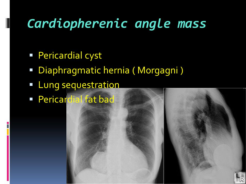 Cardiopherenic angle mass  Pericardial cyst  Diaphragmatic hernia ( Morgagni )  Lung sequestration  Pericardial fat bad