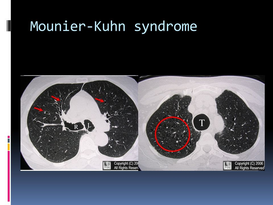 Mounier-Kuhn syndrome
