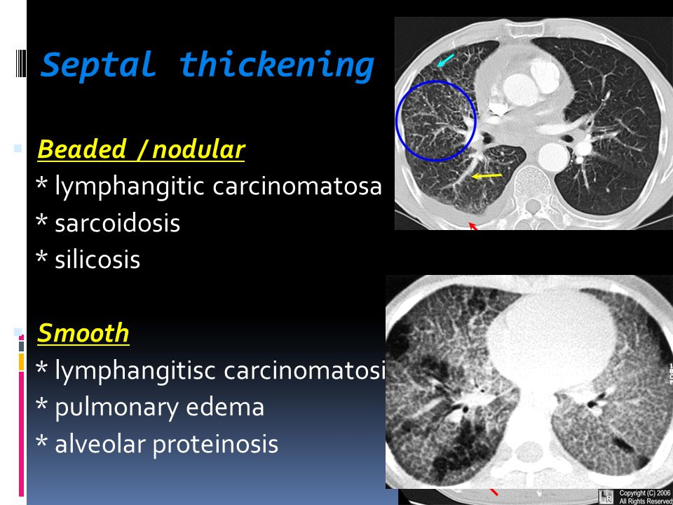 Septal thickening  Beaded / nodular * lymphangitic carcinomatosa * sarcoidosis * silicosis  Smooth * lymphangitisc carcinomatosis * pulmonary edema