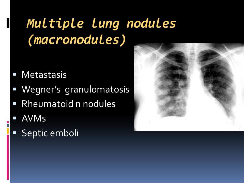 Multiple lung nodules (macronodules)  Metastasis  Wegner's granulomatosis  Rheumatoid n nodules  AVMs  Septic emboli