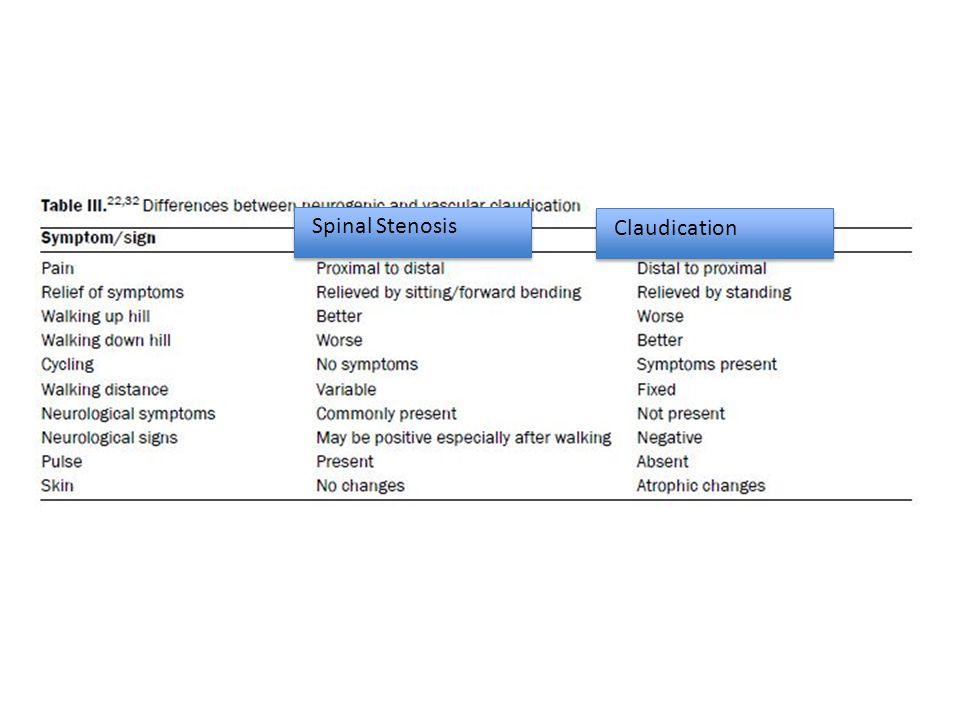 Spinal Stenosis Claudication