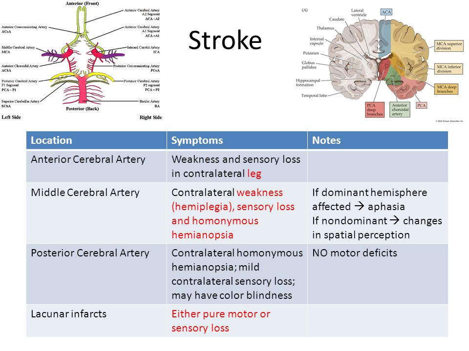 Stroke LocationSymptomsNotes Anterior Cerebral ArteryWeakness and sensory loss in contralateral leg Middle Cerebral ArteryContralateral weakness (hemiplegia), sensory loss and homonymous hemianopsia If dominant hemisphere affected  aphasia If nondominant  changes in spatial perception Posterior Cerebral ArteryContralateral homonymous hemianopsia; mild contralateral sensory loss; may have color blindness NO motor deficits Lacunar infarctsEither pure motor or sensory loss
