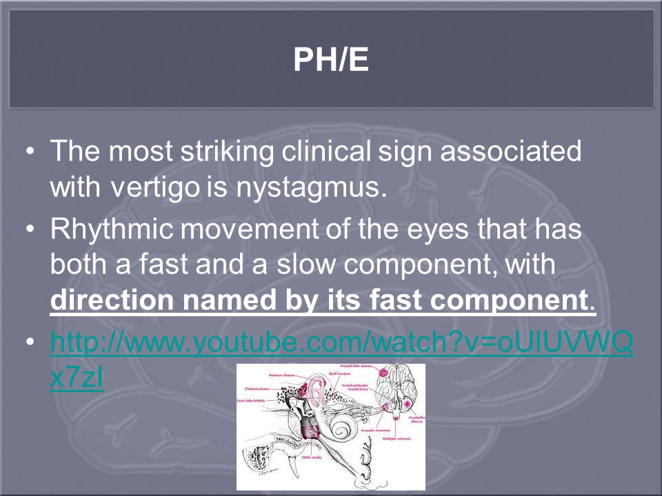 PH/E The most striking clinical sign associated with vertigo is nystagmus. Rhythmic movement of the eyes that has both a fast and a slow component, wi
