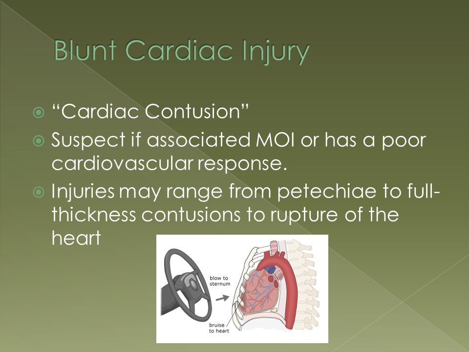 """ """"Cardiac Contusion""""  Suspect if associated MOI or has a poor cardiovascular response.  Injuries may range from petechiae to full- thickness contus"""
