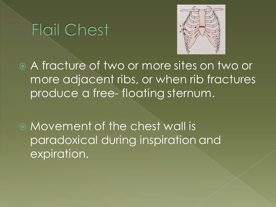  A fracture of two or more sites on two or more adjacent ribs, or when rib fractures produce a free- floating sternum.