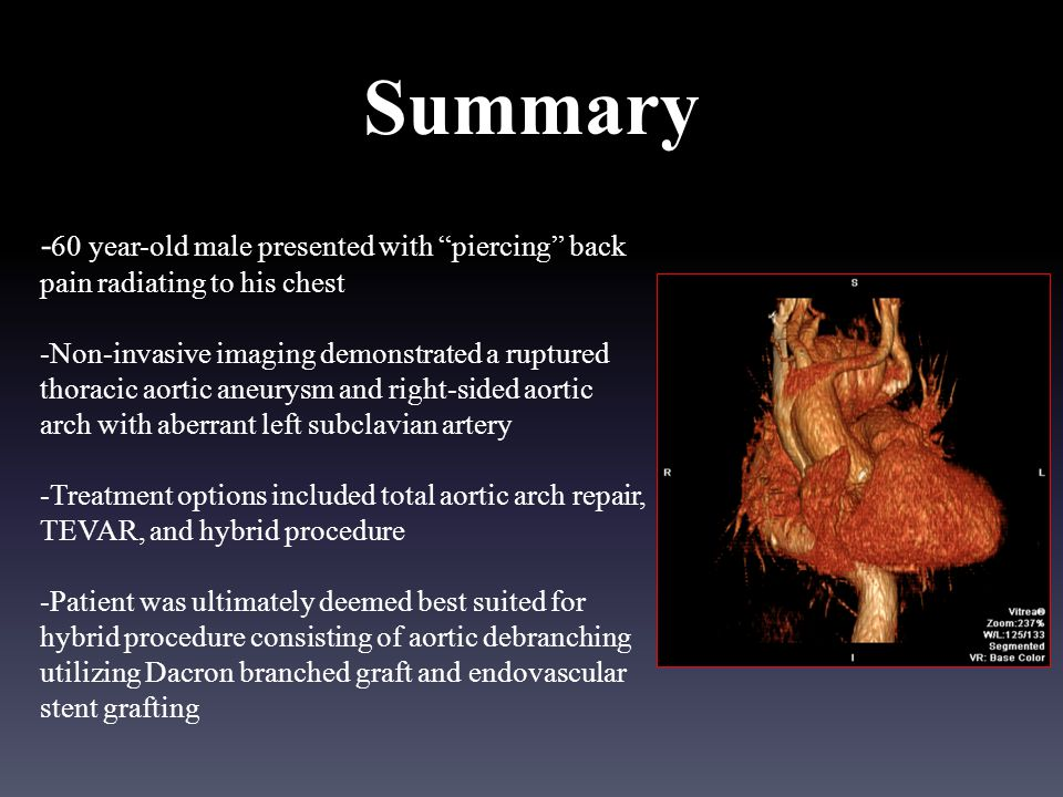 Summary - 60 year-old male presented with piercing back pain radiating to his chest -Non-invasive imaging demonstrated a ruptured thoracic aortic aneurysm and right-sided aortic arch with aberrant left subclavian artery -Treatment options included total aortic arch repair, TEVAR, and hybrid procedure -Patient was ultimately deemed best suited for hybrid procedure consisting of aortic debranching utilizing Dacron branched graft and endovascular stent grafting
