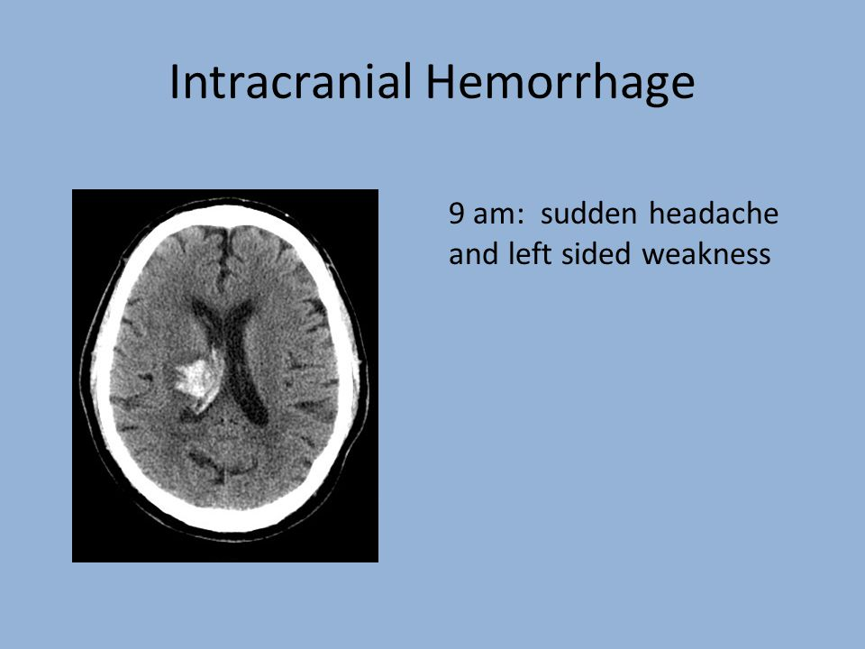 Intracranial Hemorrhage 9 am: sudden headache and left sided weakness