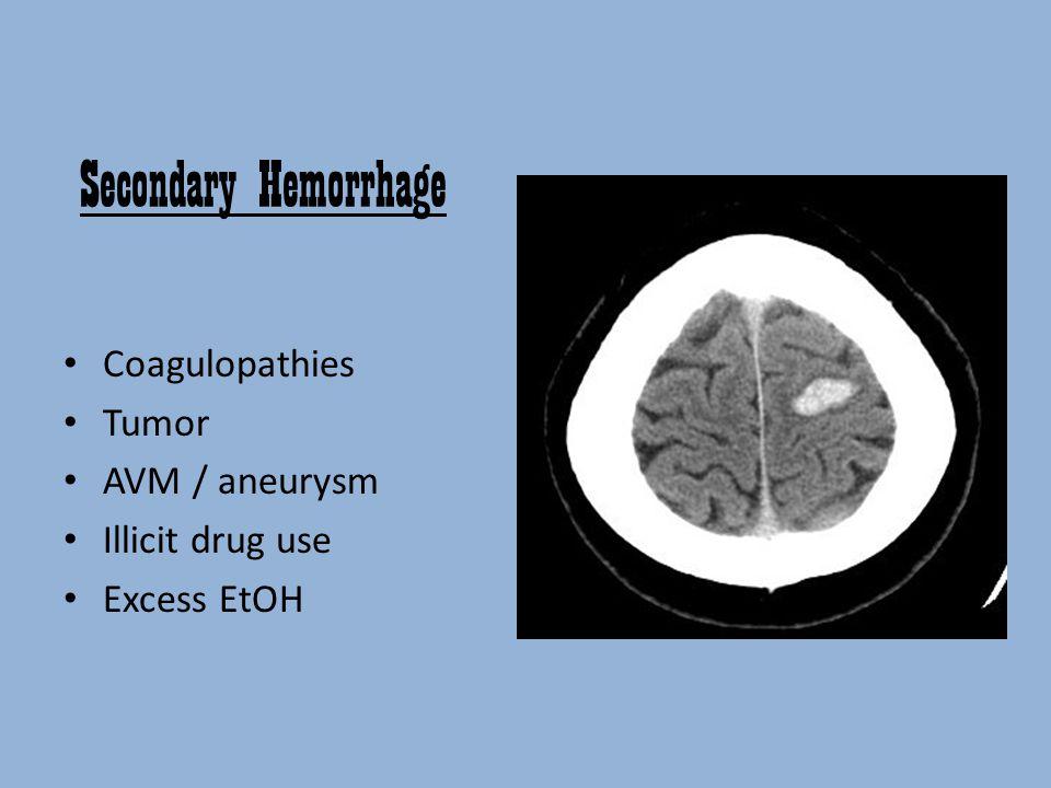 Secondary Hemorrhage Coagulopathies Tumor AVM / aneurysm Illicit drug use Excess EtOH