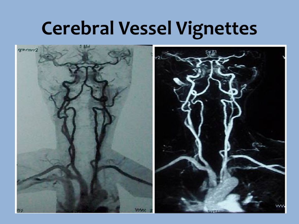 Couple of Clots 70 year old female Smoker Mopping the floor and started feeling dizzy and tired Witnessed sudden onset of aphasia, right sided weakness