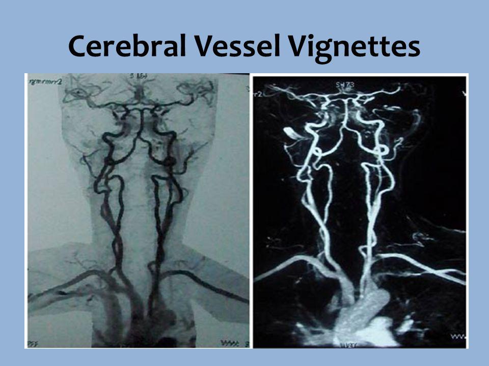Cerebral Vessel Vignettes