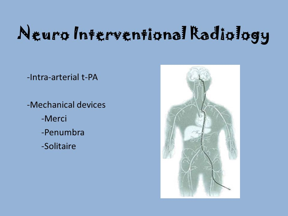 Neuro Interventional Radiology -Intra-arterial t-PA -Mechanical devices -Merci -Penumbra -Solitaire