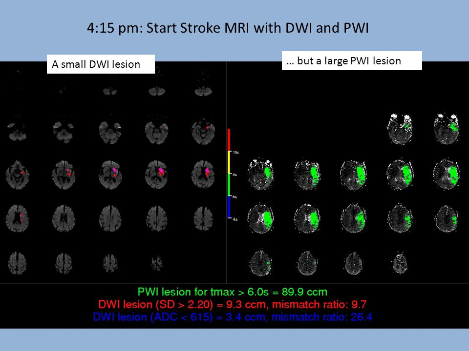 Mean MTT 8Mean XE-CT CBF 15 Mean Tmax 4s 4:15 pm: Start Stroke MRI with DWI and PWI A small DWI lesion … but a large PWI lesion