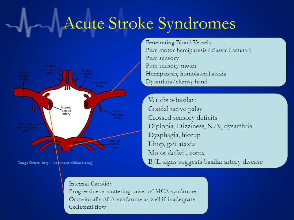 Acute Stroke Syndromes Penetrating Blood Vessels Pure motor hemiparesis ( classic Lacunar) Pure sensory Pure sensory-motor Hemiparesis, homolateral at