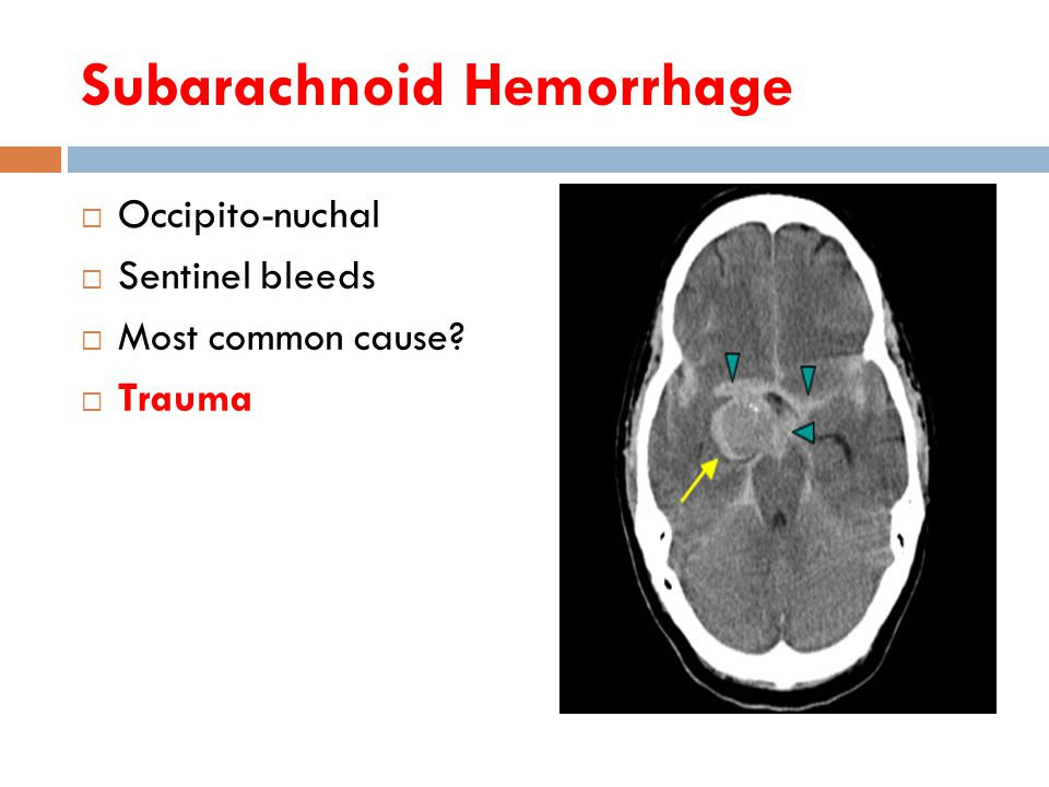 Subarachnoid Hemorrhage  Occipito-nuchal  Sentinel bleeds  Most common cause  Trauma
