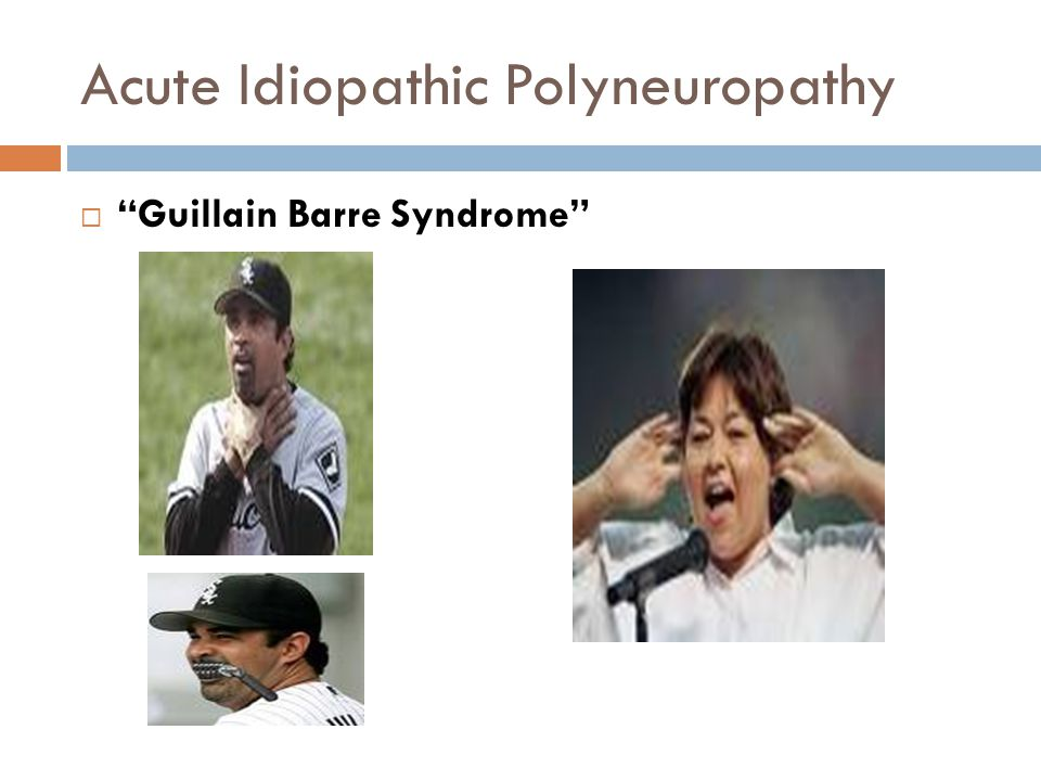 "Acute Idiopathic Polyneuropathy  ""Guillain Barre Syndrome"""